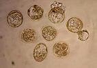 2002: Clonagem de embriões com fins terapêuticos
