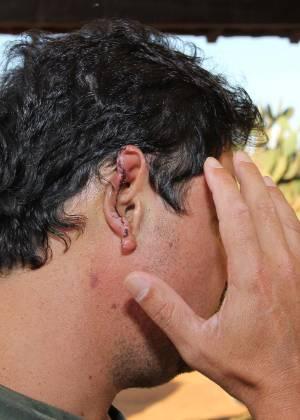Um homem de 42 anos e seu filho foram agredidos por sete homens; o pai teve parte da orelha decepada