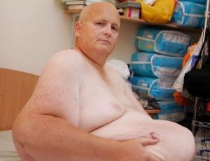 Embora mais magro, Mason ainda se incomoda com o excesso de pele, que deforma seu corpo