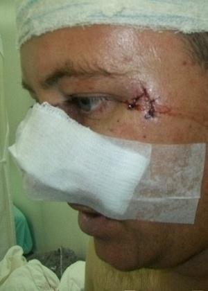 Caminhoneiro escapa vivo de ataque de onça em Mato Grosso, mas leva 200 pontos pelo corpo