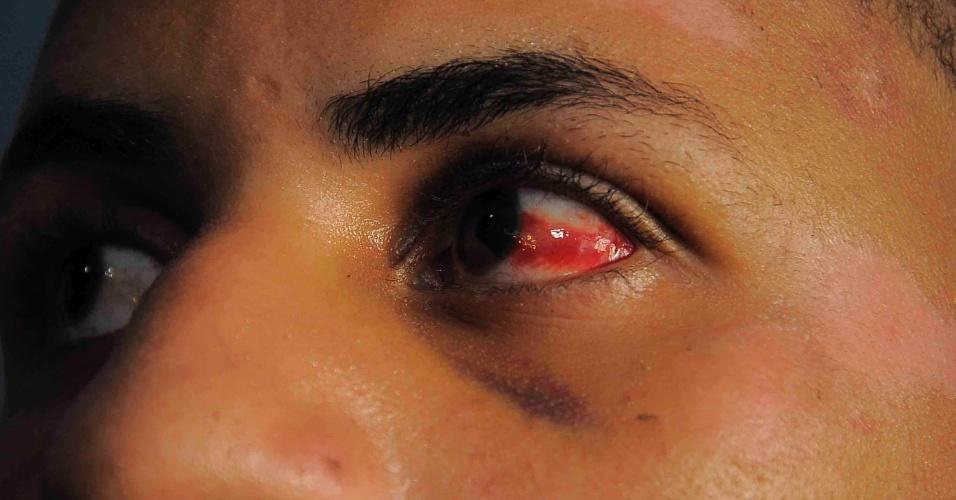 Jovem espancado na Avenida Vasco da Gama, em Salvador (BA), é fotografado enquanto espera uma resposta da polícia sobre a prisão dos agressores. A suspeita é de que o crime, que aconteceu na madrugada do último domingo (18), tenha sido motivado por homofobia