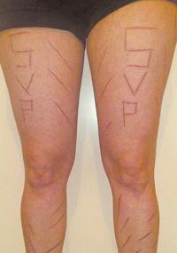 Foto de fevereiro de 2009 mostra pernas da advogada brasileira Paula Oliveira, que afirmava ter sido atacada em Zurique (Suíça) por um grupo de skinheads