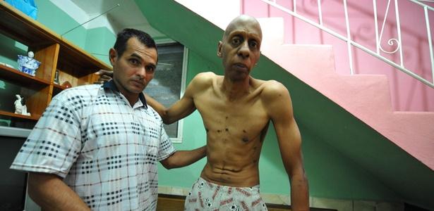 Guillermo Fariñas (dir.), durante sua greve de fome, fica de pé com ajuda do médico Ismael Iglesias