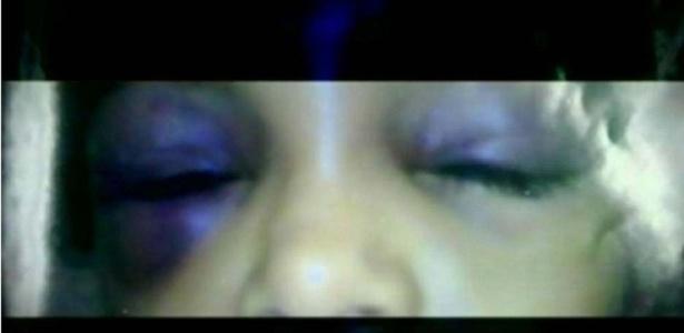 O Ministério Público do Rio de Janeiro (MP-RJ) entrou nesta terça-feira (4) com uma denúncia por tortura contra a procuradora aposentada Vera Lúcia Sant'Anna Gomes, acusada de ter agredido uma criança. Na foto divulgada pelo MP, são visíveis os sinais de agressão à menina