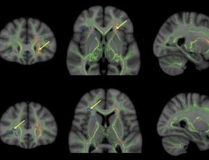Muitas áreas diferentes do cérebro estão envolvidas no ato de conceber de uma solução criativa
