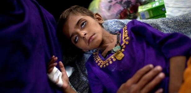 Na imagem, refugiado paquistanês que sofre de uma doença desconhecida. Muitas pessoas estão sofrendo de doenças que estão se espalhando com rapidez por causa da falta de condições sanitárias no país
