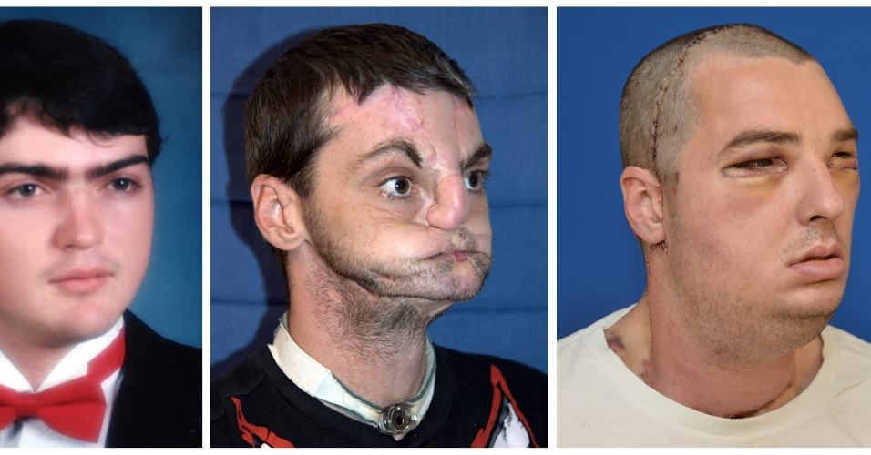 Americano ganha mandíbula, dentes e língua em transplante de face