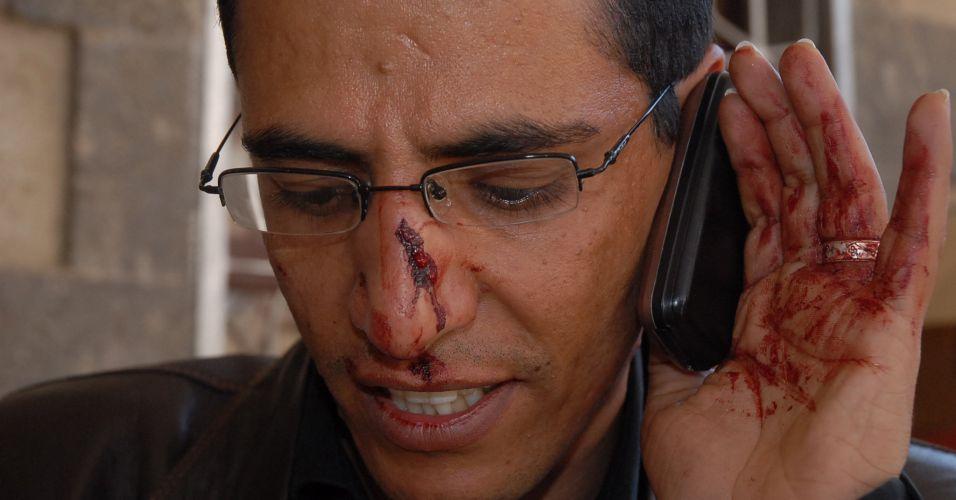 Repórter ferido no Iêmen