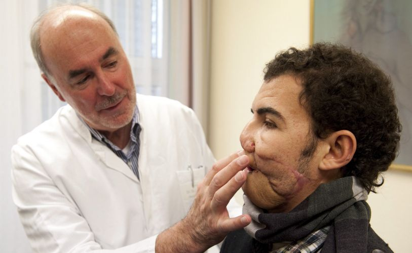 Reconstrução facial